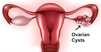 Ovarian Cyst Treatment Bangalore