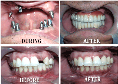 Italy Dental Implant costs 1000 USD HCMC Vietnam
