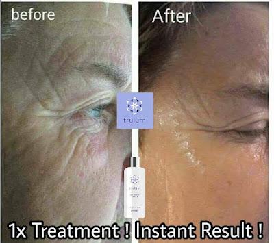 Jual Obat Penghilang Kantung Mata Trulum Skincare Sindangsari
