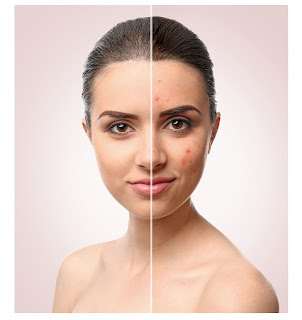 Face Treatment At Home Naturally Sinhala