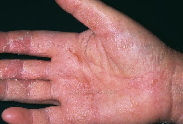 Types Of Eczema, Symptoms And Causes, Eczema, Atopic Dermatitis, Dyshidrotic Eczema,  Contact Dermatitis, Hand Eczema, Neurodermatitis, Stasis Dermatitis,    Nummular Eczema, Health, Skin Disease