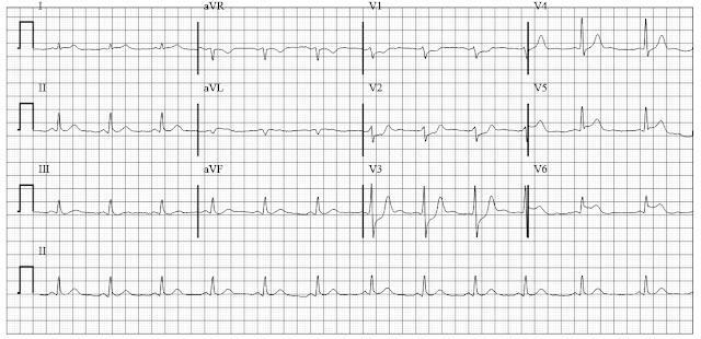 Acute lateral WAll MI