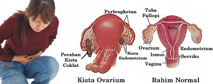 cara-mengobati-kista-ovarium
