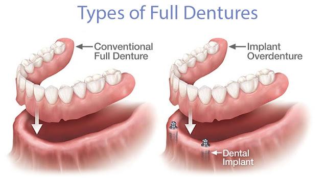 full-dentures-tracey-bell-isle-of-man-nha-khoa-thuan-kieu