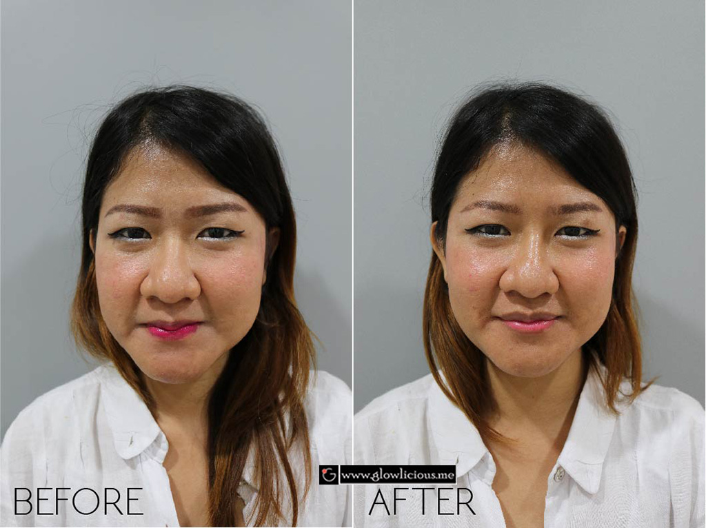Filler bibir dan Dagu - Before After