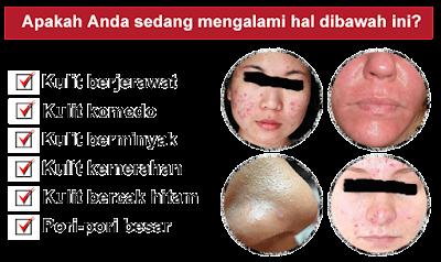 Image result for masalah kulit wajah