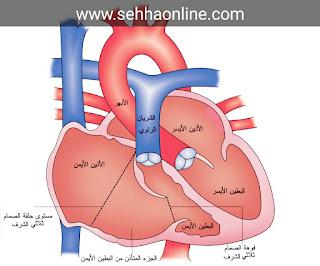 خفقان القلب المفاجئ اسبابه و علاجه-Sudden heart palpitations-Heart palpitations