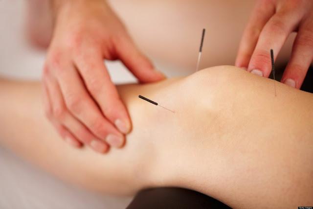 Sağlık Bakanlığına Göre Akupunktur Endikasyonları