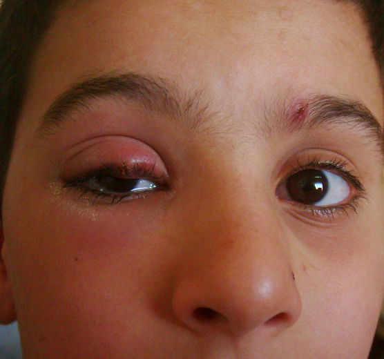 stye (hordeolum externum) | ophthalmology: diseases symptoms and, Skeleton