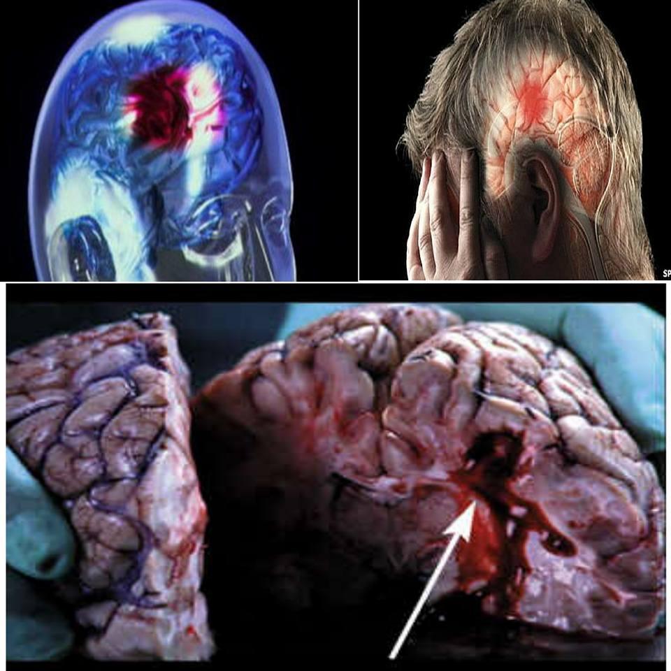 Sintomas de un derrame cerebral y como prevenirlo
