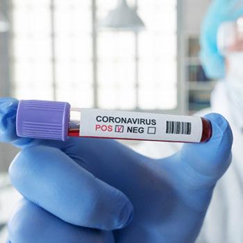 Em Escada já são 6 casos confirmados de contaminação por Covid-19 e 11 estão em investigação