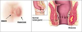 Penyebab Fistula Ani Yang Jarang Di Ketahui