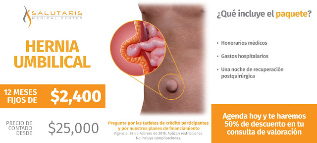 Cirugia de Hernia Umbilical en Guadalajara