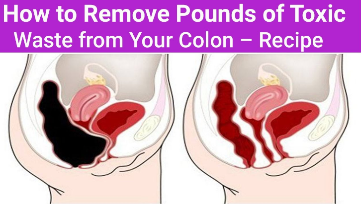 Remove 9 Pounds Of Toxins From Your Colon
