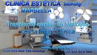 TRASPLANTE CAPILAR MARBELLA Clínica Estética  trasplante pelo para mujeres  o para hombres y Marbella y en Málaga: Te proponemos la alta calidad de servicios con los mejores