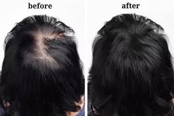 How To Increase Hair Density?