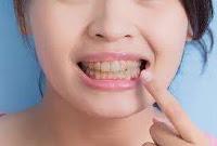 TEETH, TEETH WHITNING, दांतों का पीलापन