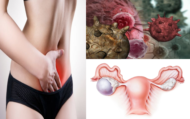 Ovarian Problem: Be Aware Of These Early Signs Of Ovarian Disease