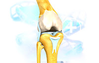 Equipment For Arthritis