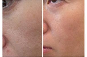 Routine à suivre pour resserrer les pores dilatés de la peau
