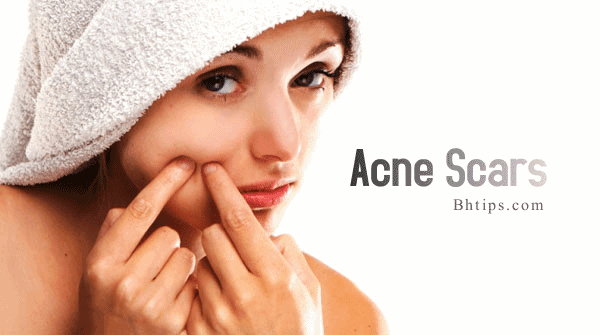 http://www.bhtips.com/2011/06/best-natural-home-remedies-for-acne.html