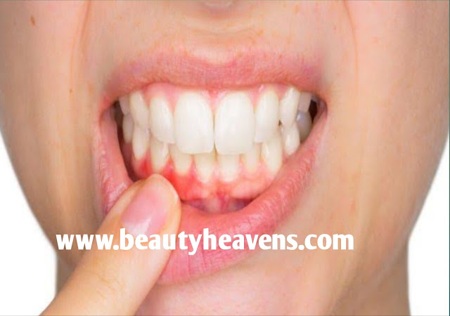 A very simple home remedy to stop bleeding gums.