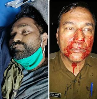 पुलिस एनकाउंटर में मारा गया अजीत हत्याकांड का मुख्य आरोपी गिरधारी उर्फ़ कन्हैया