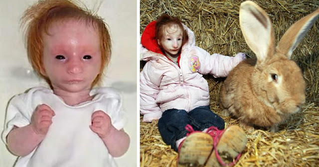 """Doctors gave """"World's Tiniest Girl"""" a death sentence – but she keeps proving them wrong"""