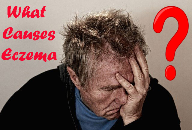 Eczema - Learn about eczema and its causes