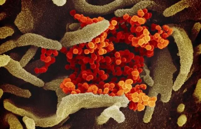 Covid-19 : Bientôt la barre 300.000 morts de franchi, le virus pourrait « ne jamais disparaître », selon l'OMS