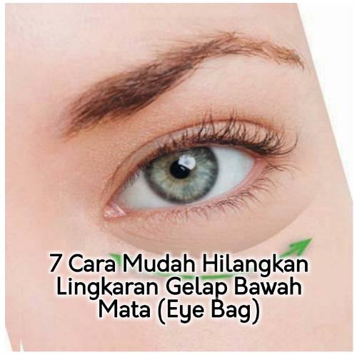7 Cara Mudah Hilangkan Lingkaran Gelap Bawah Mata Eye Bag