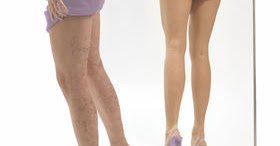 como eliminar venas verdes en las piernas