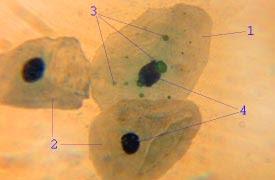 bakteri paru-paru basah