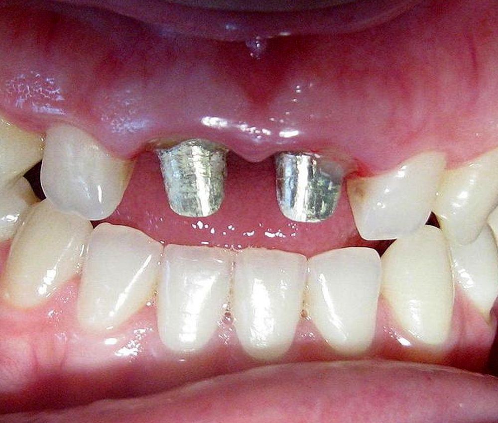 crown-after-endodontics