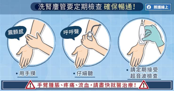 洗腎廔管要定期檢查,確保暢通!