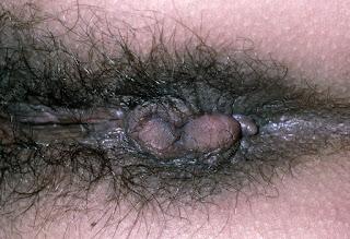 external hemorrhoid
