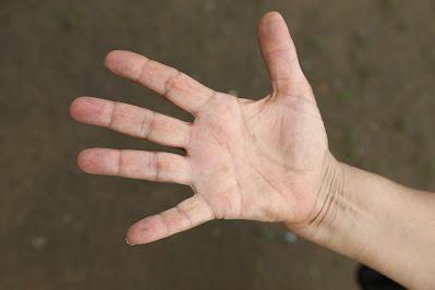 Cara mengatasi kesemutan di ujung jari tangan atau di tangan