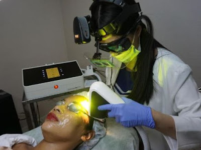 Foto Perawatan Laser Menghilangkan Flek di Miracle Aesthetic Clinic