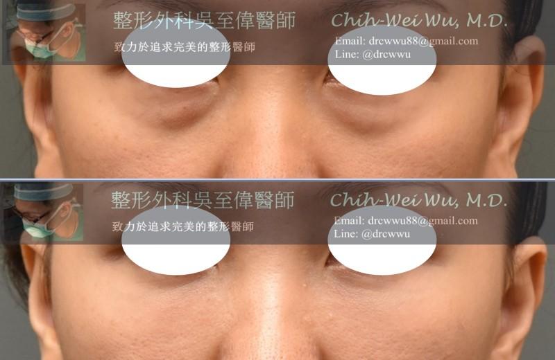 2020年7月最新眼袋手術案例,內開無痕眼袋手術+自體脂肪填補淚溝,非常有效的改善眼袋,黑眼圈與淚溝,整體氣色精神都變好許多,眼袋權威吳至偉醫師