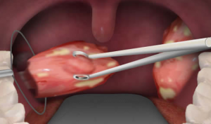 efek samping operasi amandel
