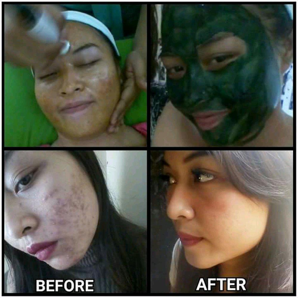 Produk Masker Untuk Kulit Berjerawat dan Obat Masker ...