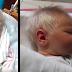 Su bebé nace con el cabello blanco; cuando los padres conocen la razón quedan sin habla