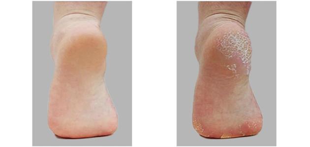 صورة قبل وبعد إزالة الجلد الميت من القدم