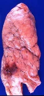 smokers lungs pictures
