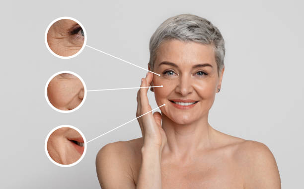 Wrinkles - how they form and how to eliminate them