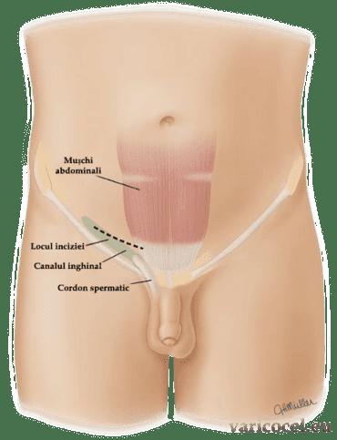 cum se efectuează operația pe varicoză