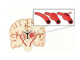 ما هو مرض المويامويا ؟
