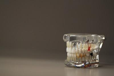 Solves Oral Problems