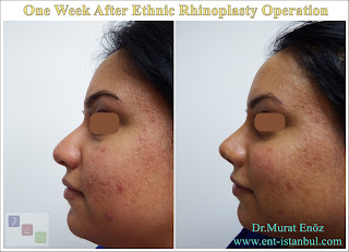 One Week After Ethnic Rhinoplasty Operation