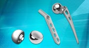 Top Quality Orthopedic Implants Manufacturer